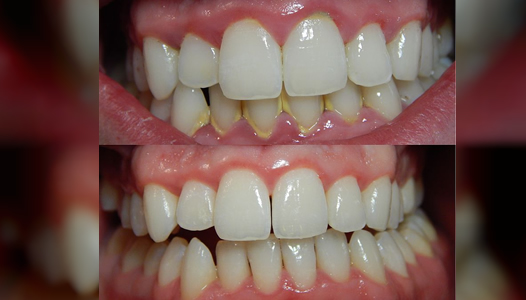Gingivitis-before-and-after-3