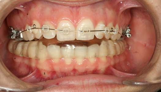 Ortodoncia-pavic-Aparato-inferior-1024x682