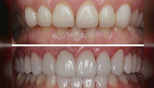 carillas-dentales-porcelana-bogota