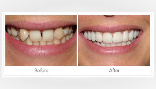 casos-antes-y-despues-odontologia-estetica-coronas-porcelana