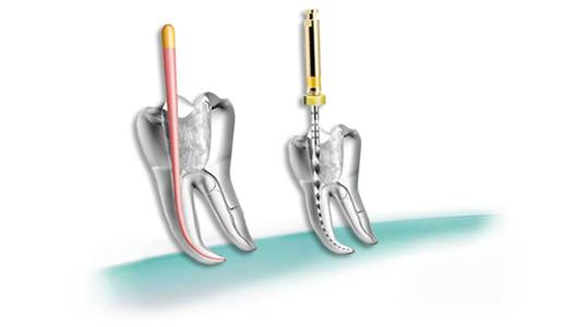 endodoncia-clinica-dental-vilches