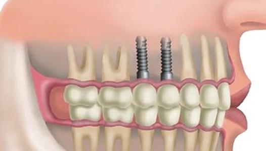 implante-dentario-preco-1