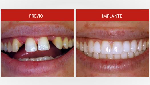 implante2
