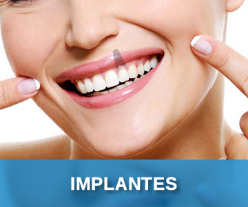 implantes.fw