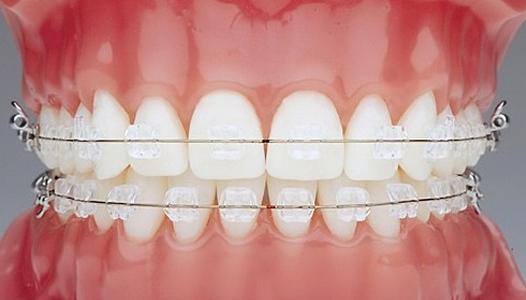 ortodoncia-5177