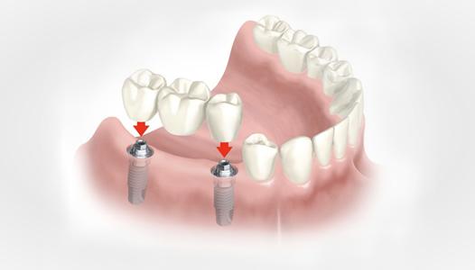 protesis-fija1-1024x920